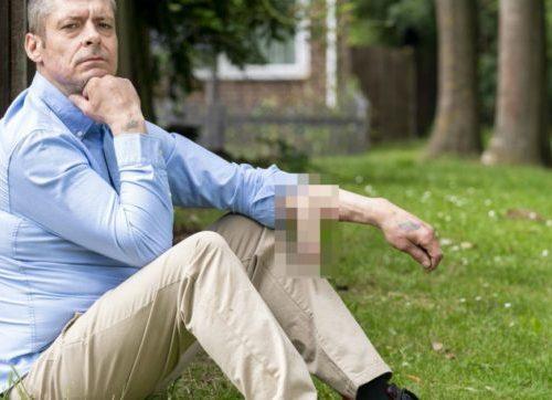 Perde il pene a causa di una grave infezione, i medici glielo fanno ricrescere sul braccio